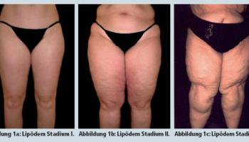 Weight loss swollen stomach