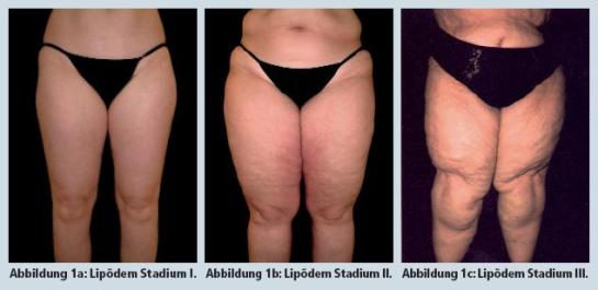 Stage of Lipedema