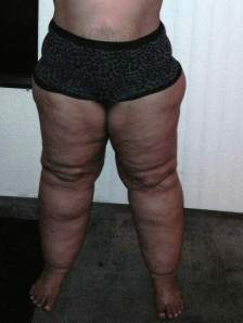 lipedema_front_stage2early3
